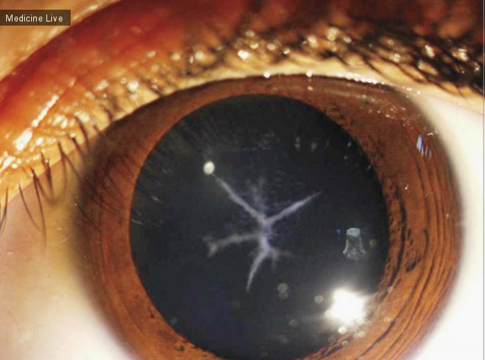 Интересный случай: Пример шовной катаракты