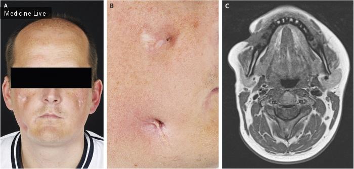 Интересный случай: Лицевая фистула, ассоциированная с болезнью Крона