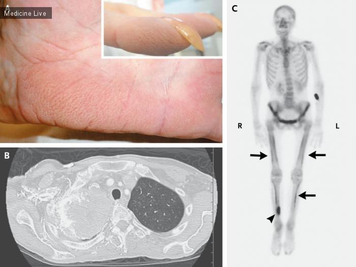 Интересный случай: Гипертрофическая легочная остеоартропатия и пальмарное рубцевание