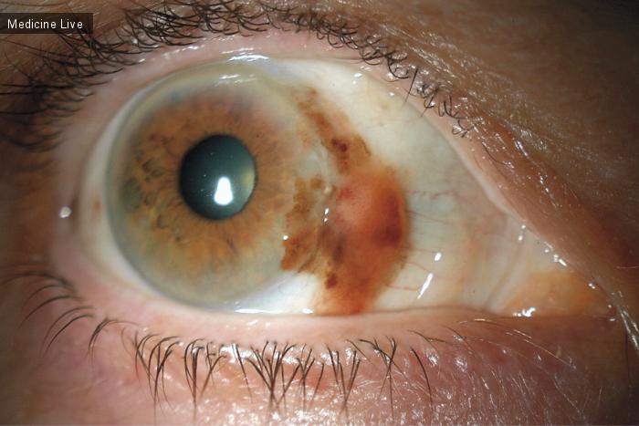 Интересный случай: Конъюнктиальная меланома