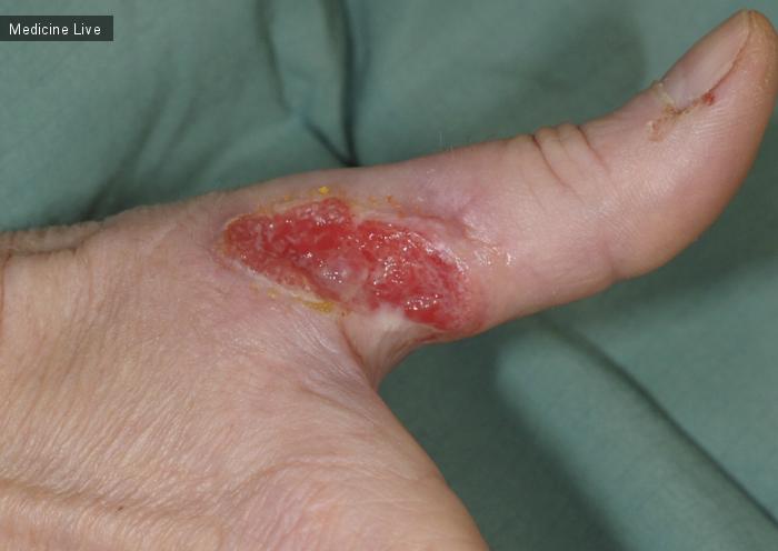 Интересный случай: Плоскоклеточный рак, маскирующийся под гангренозную пиодермию.