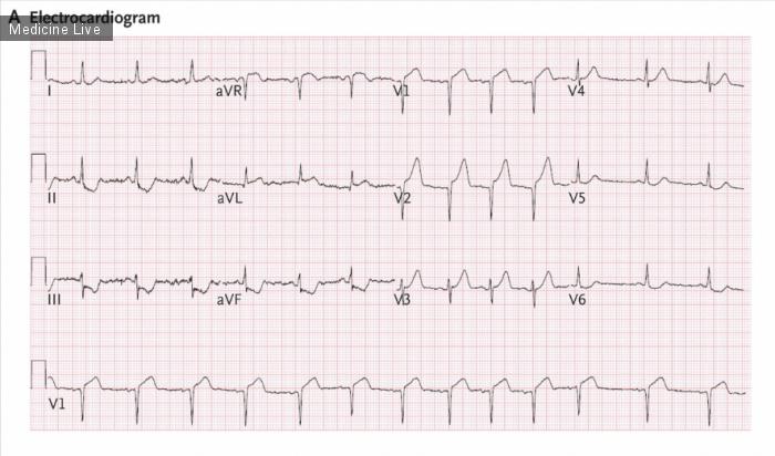 Интересный случай: Фибрилляция желудочков при вентрикулографии.