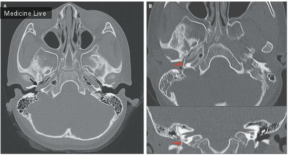 Интересный случай: Аномалии артерий