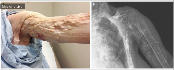 Интересный случай: Диффузный кальциноз мягких тканей при дерматомиозите