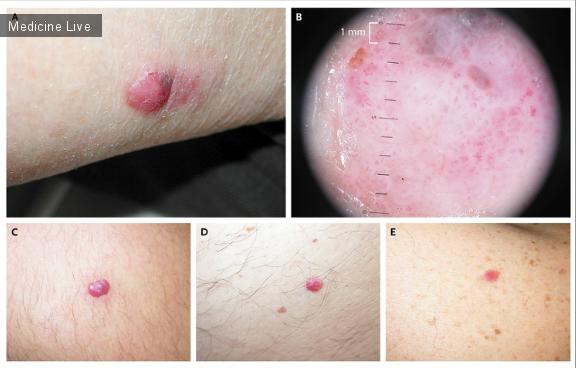 Интересный случай: Красная меланома