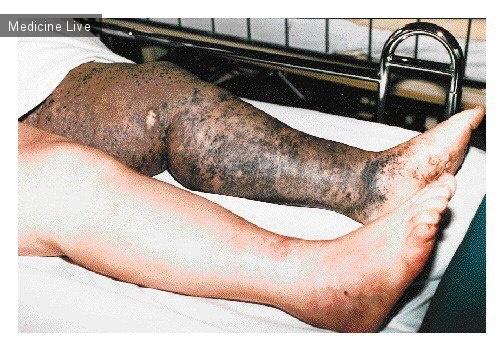 Интересный случай: Метастазы меланомы кожи.