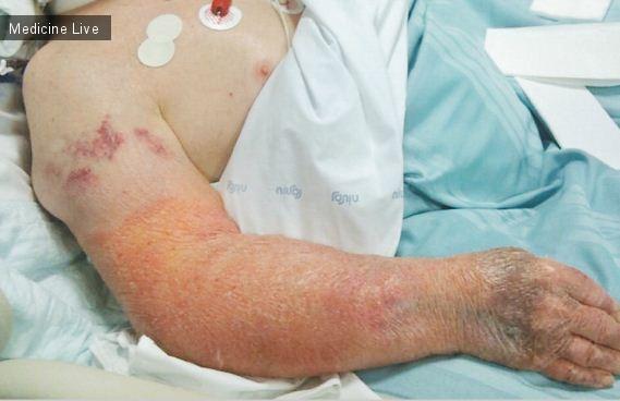 Интересный случай: Пациент с фоточувствительным дерматитом в отделении интенсивной терапии.