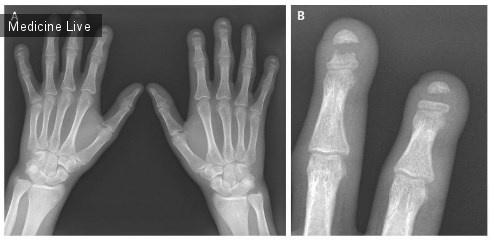 Интересный случай: Акроостеолиз с полосной деструкцией фаланг пальцев рук