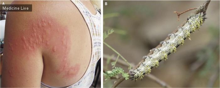 Интересный случай: Эруцизм, вызванный контактом с гусеницей отряда чешуекрылых