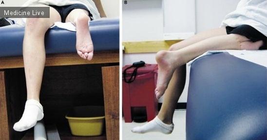 Интересный случай: Ротационная пластика при  саркоме Юинга в  дистальном отделе бедренной кости.