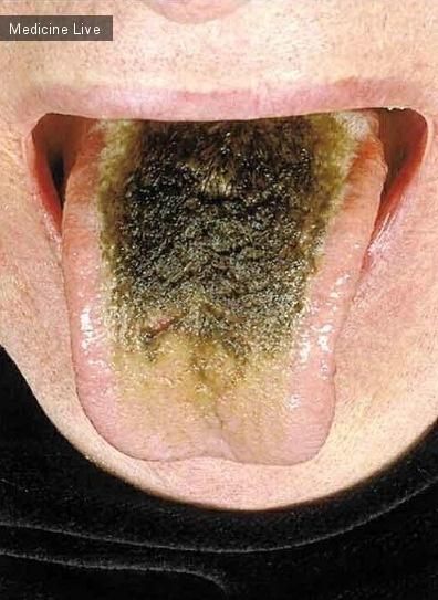 Интересный случай: Черный «волосатый» язык