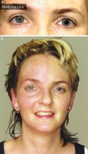 Интересный случай: Тонический зрачок  Эйди в сочетании с синдромом Росса