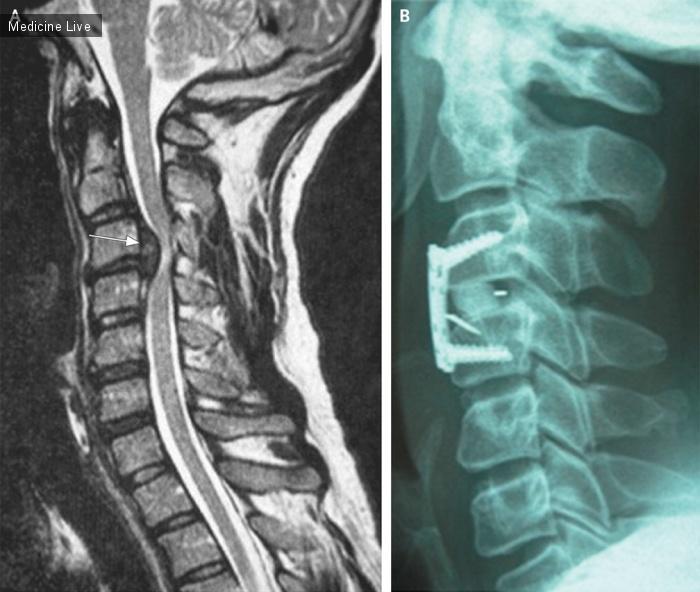 Интересный случай: Посттравматическая грыжа цервикального межпозвонкового диска