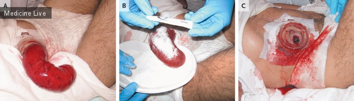 Интересный случай: Применение сахара для вправления выпавшего отрезка подвздошной кишки после илеостомии