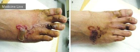 Интересный случай: Синдром larva migrans