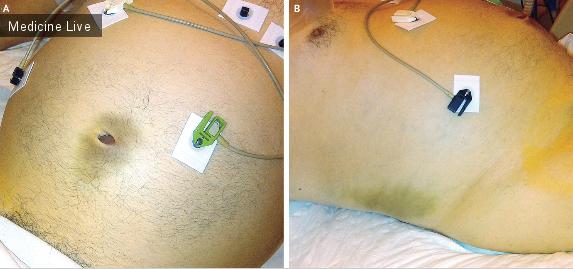 Интересный случай: Симптомы Куллена и Грея Тернера при остром панкреатите