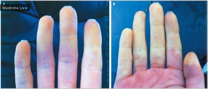 Интересный случай: Изменение цвета после воздействия холода при болезни Рейно