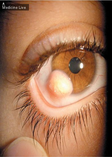Интересный случай: Волосатый глаз - лимбальный дермоид