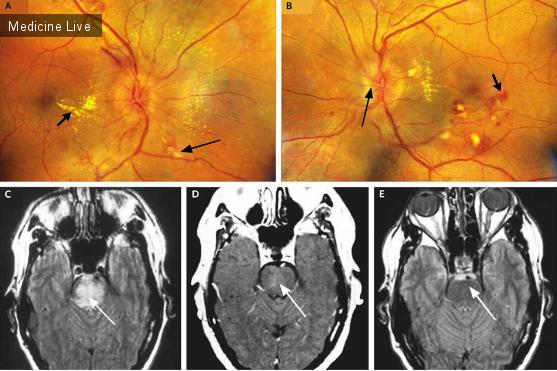 Интересный случай: Изменения в стволе головного мозга и глазном дне при злокачественной гипертензии
