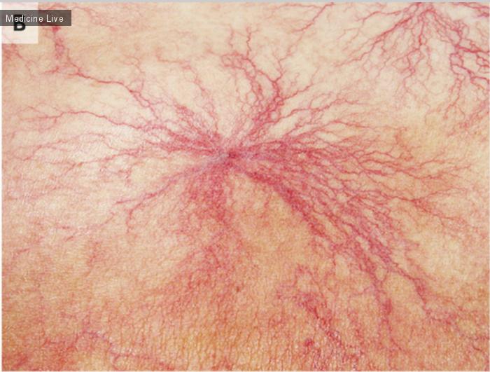 Интересный случай: Кожная коллагенозная васкулопатия