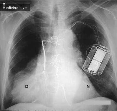 Интересный случай: Рисунок В-рентген
