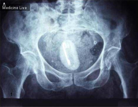 Интересный случай: Рисунок А - Рентген живота