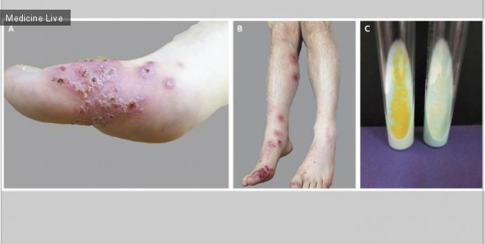 Интересный случай: Споротрихоидная (Атипичная) микобактериальная инфекция