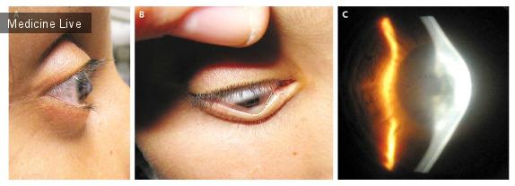 Интересный случай: Кератоконус, осложненный водянкой роговицы