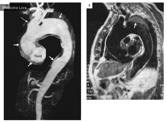 Интересный случай: Сифилитический аортит