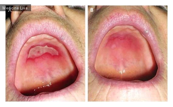 Интересный случай: Бифосфонат ассоциированный контактный стоматит