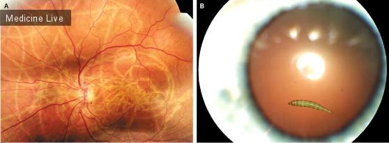 Интересный случай: Миаз глаза