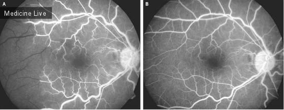 Интересный случай: Окклюзии ретинальных артериол при серповидно-клеточной анемии