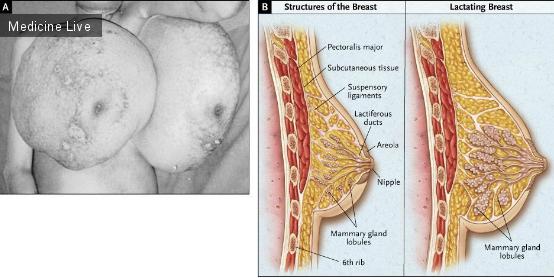 Интересный случай: Доброкачественная диффузная гиперплазия молочной железы во время беременности