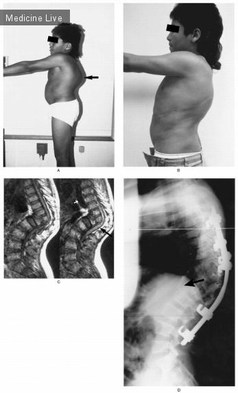 Интересный случай: Туберкулезный спондилит (болезнь Pott) с парапарезом («Pott's Disease with Paraparesis»).