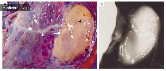 Интересный случай: Fetus Papyraceus