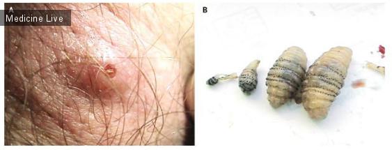 Интересный случай: Дерматобиаз при поражении личинками Dermatobia hominis(«Myiasis Due toDermatobia hominis(Human Botfly)»)