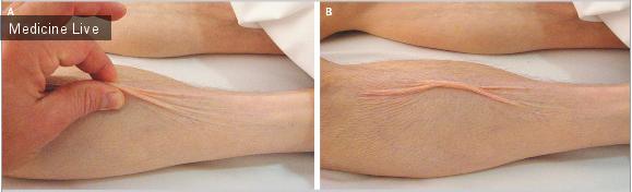 Интересный случай: Снижение тургора кожи