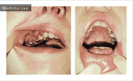 Интересный случай: Десневая гипертрофия при миеломоноцитарном лейкозе