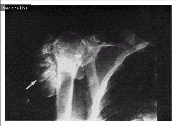 Интересный случай: Метастатическое обызвествление плечевой кости при хронической почечной недостаточности.