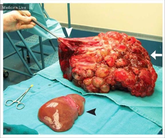 Интересный случай: Пересадка печени при поликистозе