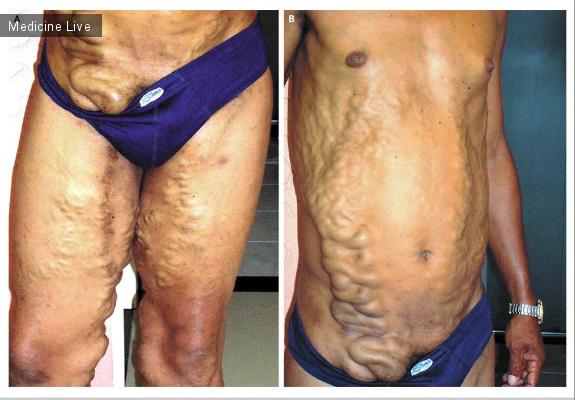 Интересный случай: Извилистые варикозные расширения вен при шистосомозе