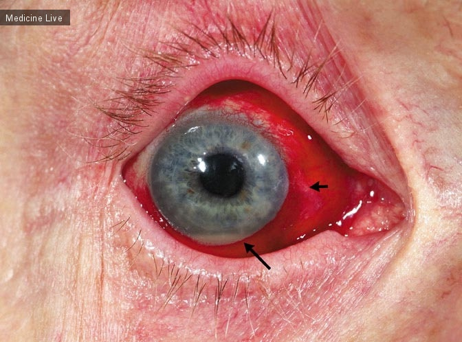Интересный случай: Эндогенный эндофтальмит