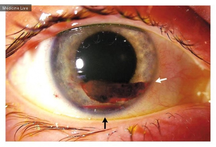 Интересный случай: Офтальмология