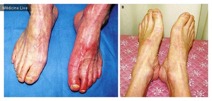 Интересный случай: Заболевание периферических артерий