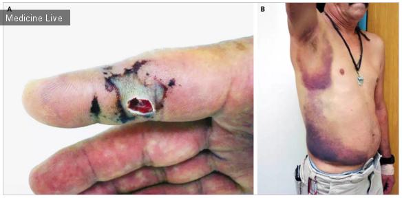Интересный случай: Интоксикация после укуса гремучей змеи