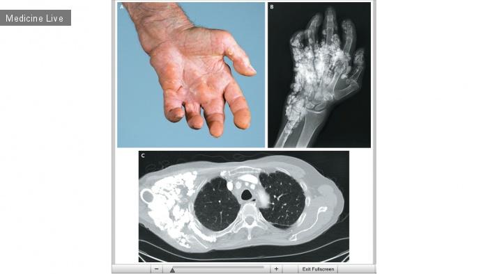Интересный случай: Кальциноз кожи при системной склеродермии