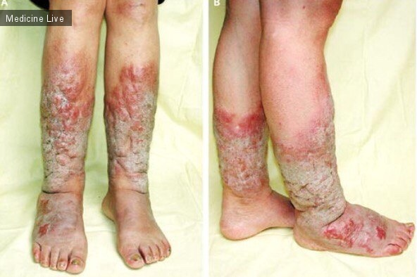 Интересный случай: Дермопатия при Базедовой болезни