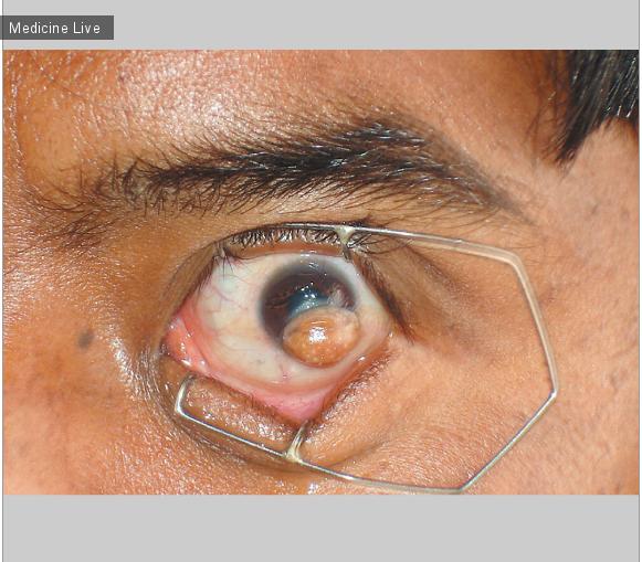 Интересный случай: Лимбальный дермоид