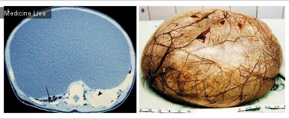 Интересный случай: Гигантская киста яичников