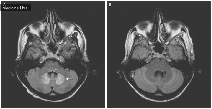 Интересный случай: Метронидазол-ассоциированная энцефалопатия